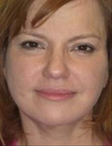Facelift After Photo by Carmen Kavali, MD; Atlanta, GA - Case 25385