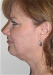 Facelift Before Photo by Carmen Kavali, MD; Atlanta, GA - Case 25385