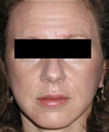 Facelift After Photo by Carmen Kavali, MD; Atlanta, GA - Case 25389