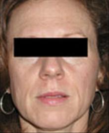 Facelift Before Photo by Carmen Kavali, MD; Atlanta, GA - Case 25389