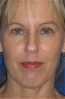 Dermal Fillers After Photo by Carmen Kavali, MD; Atlanta, GA - Case 25390