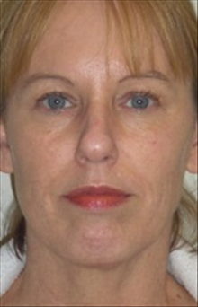 Dermal Fillers Before Photo by Carmen Kavali, MD; Atlanta, GA - Case 25390