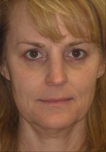 Dermal Fillers Before Photo by Carmen Kavali, MD; Atlanta, GA - Case 25391