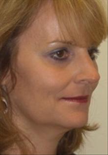 Dermal Fillers After Photo by Carmen Kavali, MD; Atlanta, GA - Case 25391