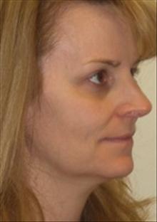 Dermal Fillers Before Photo by Carmen Kavali, MD; Atlanta, GA - Case 25391