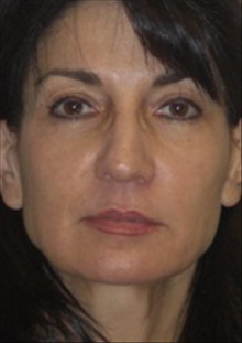 Dermal Fillers After Photo by Carmen Kavali, MD; Atlanta, GA - Case 25392