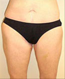 Body Contouring After Photo by Carmen Kavali, MD; Atlanta, GA - Case 25393