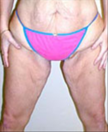 Body Contouring Before Photo by Carmen Kavali, MD; Atlanta, GA - Case 25393
