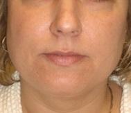 Liposuction After Photo by Carmen Kavali, MD; Atlanta, GA - Case 25401