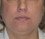Liposuction Before Photo by Carmen Kavali, MD; Atlanta, GA - Case 25401