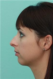 Rhinoplasty Before Photo by Michael Bogdan, MD, MBA, FACS; Southlake, TX - Case 21233