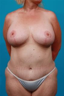 Tummy Tuck After Photo by Michael Bogdan, MD, MBA, FACS; Southlake, TX - Case 22879