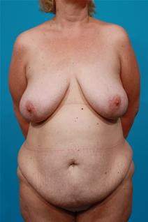 Tummy Tuck Before Photo by Michael Bogdan, MD, MBA, FACS; Southlake, TX - Case 22879