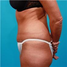 Tummy Tuck After Photo by Michael Bogdan, MD, MBA, FACS; Southlake, TX - Case 22882