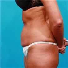 Tummy Tuck Before Photo by Michael Bogdan, MD, MBA, FACS; Southlake, TX - Case 22882