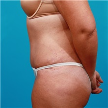 Tummy Tuck After Photo by Michael Bogdan, MD, MBA, FACS; Southlake, TX - Case 22884
