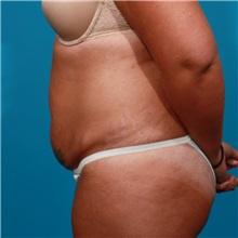 Tummy Tuck Before Photo by Michael Bogdan, MD, MBA, FACS; Southlake, TX - Case 22884