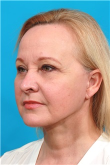 Facelift After Photo by Michael Bogdan, MD, MBA, FACS; Southlake, TX - Case 31850