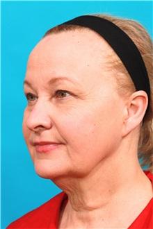 Facelift Before Photo by Michael Bogdan, MD, MBA, FACS; Southlake, TX - Case 31850