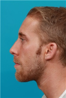 Chin Augmentation After Photo by Michael Bogdan, MD, MBA, FACS; Southlake, TX - Case 31852