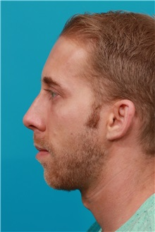 Chin Augmentation Before Photo by Michael Bogdan, MD, MBA, FACS; Southlake, TX - Case 31852