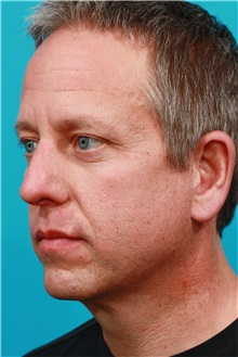 Facelift After Photo by Michael Bogdan, MD, MBA, FACS; Southlake, TX - Case 31853