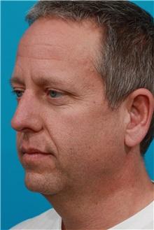 Facelift Before Photo by Michael Bogdan, MD, MBA, FACS; Southlake, TX - Case 31853