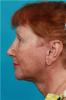 Facelift After Photo by Michael Bogdan, MD, MBA, FACS; Southlake, TX - Case 31854