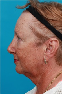 Facelift Before Photo by Michael Bogdan, MD, MBA, FACS; Southlake, TX - Case 31854