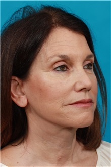 Facelift After Photo by Michael Bogdan, MD, MBA, FACS; Southlake, TX - Case 31855