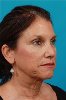 Facelift Before Photo by Michael Bogdan, MD, MBA, FACS; Southlake, TX - Case 31855