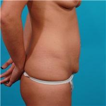 Tummy Tuck Before Photo by Michael Bogdan, MD, MBA, FACS; Grapevine, TX - Case 31857