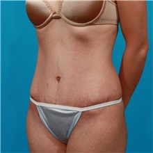 Tummy Tuck After Photo by Michael Bogdan, MD, MBA, FACS; Southlake, TX - Case 31864