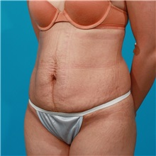 Tummy Tuck Before Photo by Michael Bogdan, MD, MBA, FACS; Southlake, TX - Case 31864