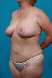 Tummy Tuck After Photo by Michael Bogdan, MD, MBA, FACS; Southlake, TX - Case 31865