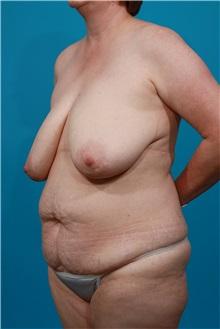 Tummy Tuck Before Photo by Michael Bogdan, MD, MBA, FACS; Southlake, TX - Case 31865