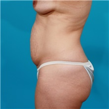 Tummy Tuck Before Photo by Michael Bogdan, MD, MBA, FACS; Southlake, TX - Case 31868