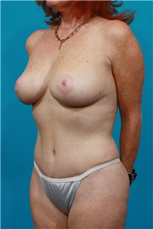Tummy Tuck After Photo by Michael Bogdan, MD, MBA, FACS; Southlake, TX - Case 31869