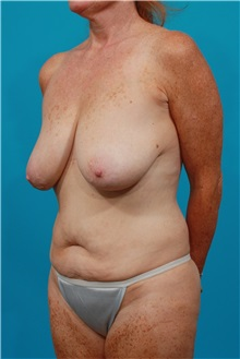 Tummy Tuck Before Photo by Michael Bogdan, MD, MBA, FACS; Southlake, TX - Case 31869