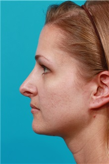 Rhinoplasty After Photo by Michael Bogdan, MD, MBA, FACS; Southlake, TX - Case 31870