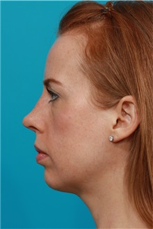 Rhinoplasty After Photo by Michael Bogdan, MD, MBA, FACS; Southlake, TX - Case 31871
