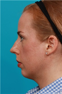 Rhinoplasty Before Photo by Michael Bogdan, MD, MBA, FACS; Southlake, TX - Case 31871