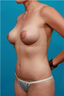 Tummy Tuck After Photo by Michael Bogdan, MD, MBA, FACS; Southlake, TX - Case 31874