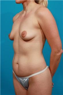 Tummy Tuck Before Photo by Michael Bogdan, MD, MBA, FACS; Southlake, TX - Case 31874