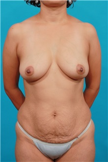 Tummy Tuck Before Photo by Michael Bogdan, MD, MBA, FACS; Southlake, TX - Case 31875