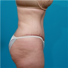 Tummy Tuck After Photo by Michael Bogdan, MD, MBA, FACS; Grapevine, TX - Case 31940
