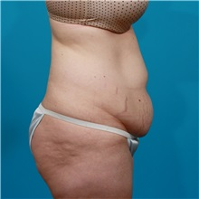 Tummy Tuck Before Photo by Michael Bogdan, MD, MBA, FACS; Grapevine, TX - Case 31940