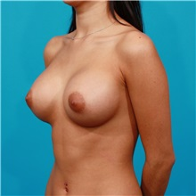 Breast Augmentation After Photo by Michael Bogdan, MD, MBA, FACS; Southlake, TX - Case 31942