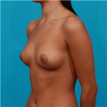 Breast Augmentation Before Photo by Michael Bogdan, MD, MBA, FACS; Southlake, TX - Case 31942