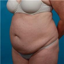 Tummy Tuck Before Photo by Michael Bogdan, MD, MBA, FACS; Southlake, TX - Case 31946